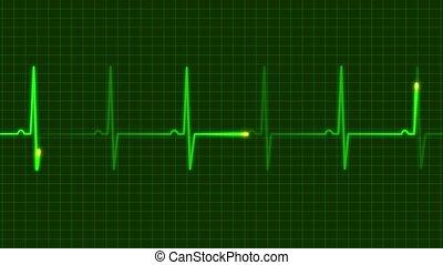 electrocardiograms - reading electrocardiograms person