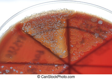 Bacteria on petri dish - Petri dish close up Bacteria...