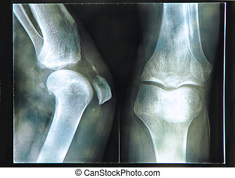 Knee X-ray - 