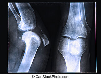 Knee X-ray - X-Ray image if the human knee
