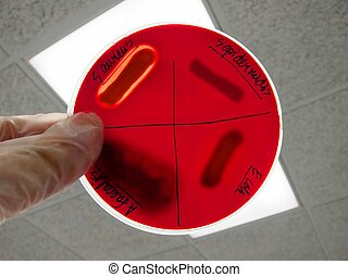 Bacterial colony on blood agar - Bacterial pathogen colony...