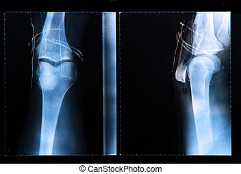 Knee X-ray after arthroscopic surgery - Knee X-ray after...