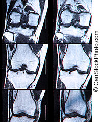 Anterior cruciate ligament tear seen on knee MRI. - Anterior...