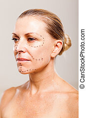 senior patient before plastic surgery - senior woman patient...