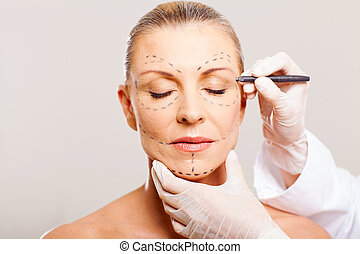 middle aged woman with correction lines before cosmetic...
