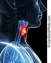 Highlighted thyroid cancer - 3d rendered illustration of a...
