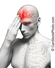 Migraine/headache - 3d rendered conceptual illustration of...