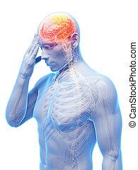Migraine/headache - 3d rendered conceptual illustration of...