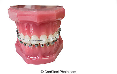 Dental braces model - Close up of braces model isolated on...