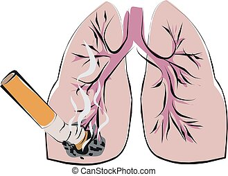 lung cancer - smoking is cause to lung cancer