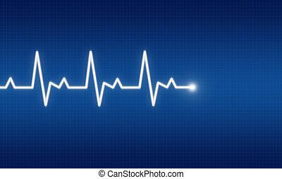EKG - illustration of EKG trace on blue background