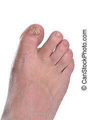 Big Toe - foot with toe nail fungus