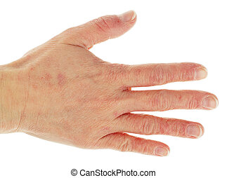 eczema, dermatite, costas, mão, Dedos