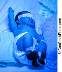 bebê, durante, icterícia, tratamento