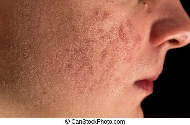 Severe Acne - Young man severe acne cheeks and lips closeup
