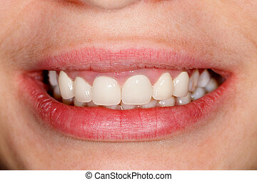 Porcelain crowns - Beautiful teeth of a young woman - dental...