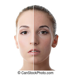Beautiful girl with problems on face - The beautiful girl...