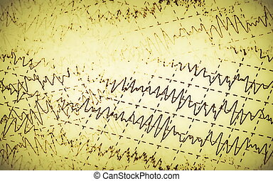brain wave eeg isolated on yellow background