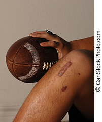 ACL injury holding a football