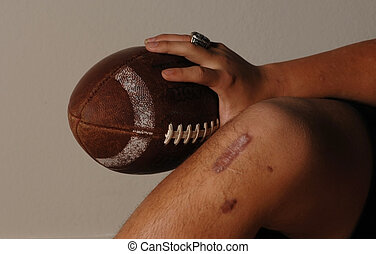 ACL injury - Football knee injury.
