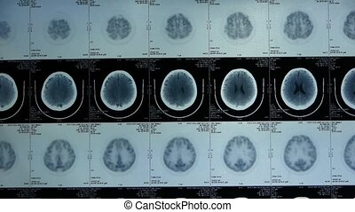 moving skull brain X-ray,head pet cT scan...