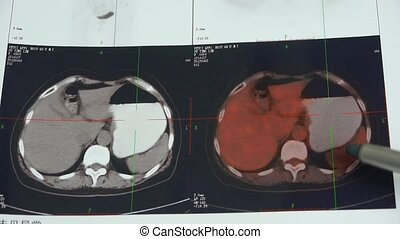 doctor study color stomach pet-ct scan,human organ X-ray...