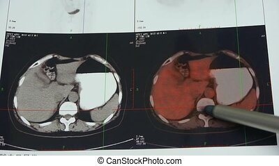 doctor study color stomach & pancreas pet-ct scan,human...