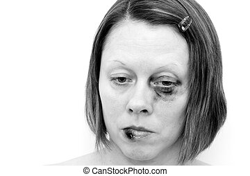 female victim of assault looking down