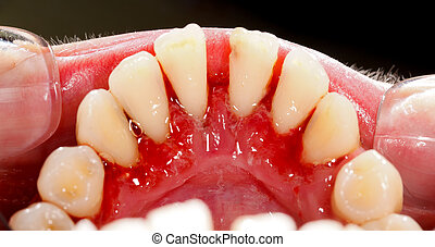 After Dental Treatment - Human mouth after dental treatment...
