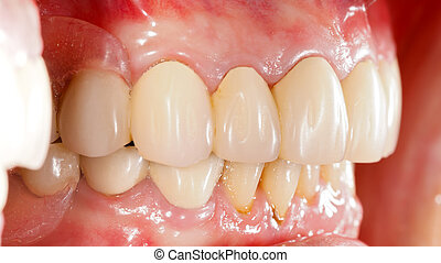 Dental Prosthetics - Human mouth with dental prosthetics in...