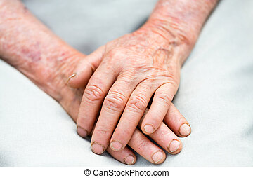 Elderly Hands - Two elderly hands representing the passing...