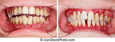 Before and After Treatment - Human denture on dental...