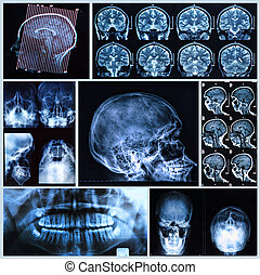 Head and neck anatomy - X-ray, tomography and MRI scans of...