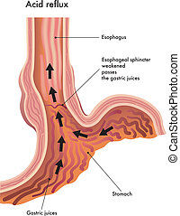 Acid reflux - medical illustration of the effects of the...