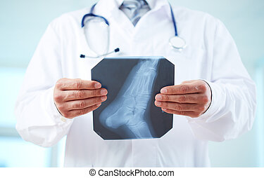 X-ray of foot - Close-up of doctor holding x-ray of human...