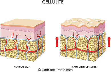 Cellulite - medical illustration of the formation of...