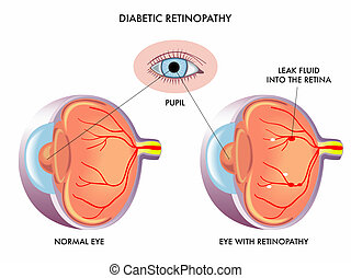 diabetic retinopathy - Illustration of the symptoms of...