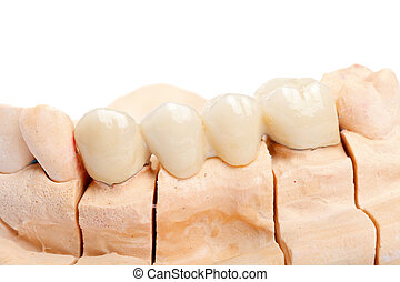 Teeth rehabilitation