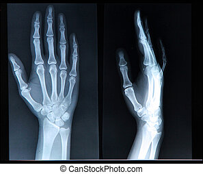 Xray of Hand fingers - Xray of human Hand fingers