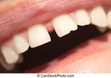 dientes, macro