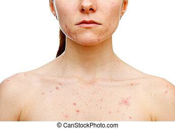 Skin problems - Portrait of woman showing her pimples on...