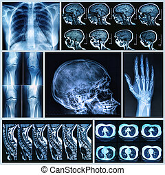 Radiography of Human Bones: x-ray and MRI scans