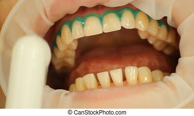 Teeth Whitening. Insulation gel soft tissue. stomatology
