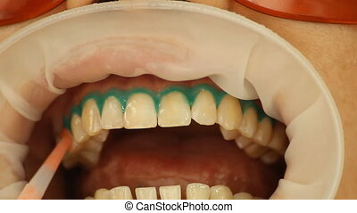 Teeth Whitening Application of whitening gel to the teeth...