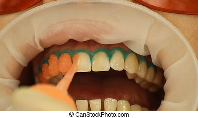 Teeth Whitening. Application of whitening gel to the teeth....