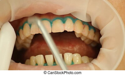 Teeth Whitening. Procedure, washing with water. stomatology