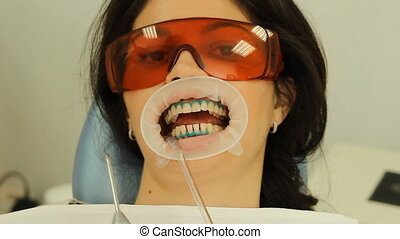 Teeth Whitening. Procedure, washing