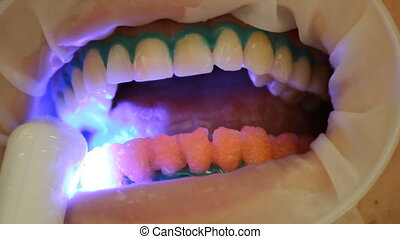 Teeth Whitening. Activation of the gel polymerization light....