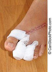 heridas, mujeres, pie