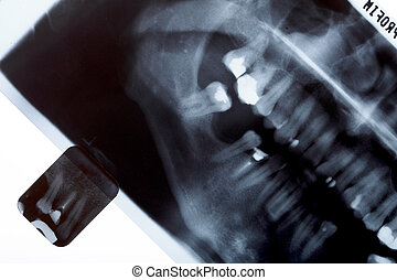 X-ray scan of humans teeth - Panoramic and detail x-ray...